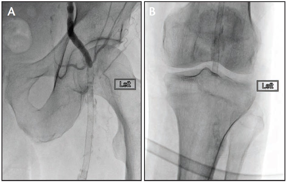 PV Podium - occluded profunda and no flow in the tibial vessels (A, B)