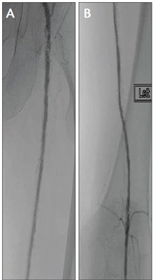 PV Podium Angiogram showing a proximal inflow lesion and a distal outflow lesion, both within the stent (A, B)