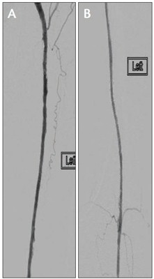 PV Podium Final angiogram demonstrating a good angiographic result (A, B)