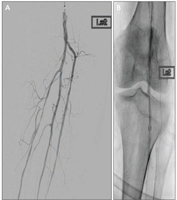 PV Podium Angiogram showing filter deployment in the popliteal artery (A, B)