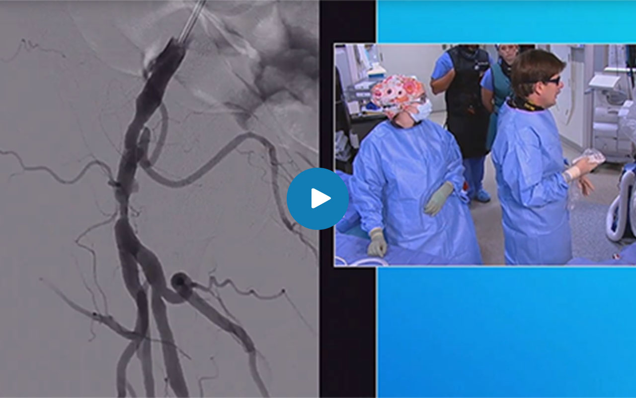 Atherectomy of Common Femoral and Superficial Femoral Arteries