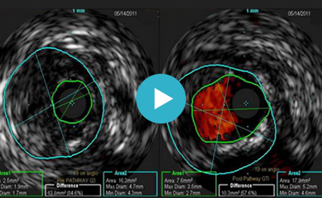 Role of Intravascular Ultrasound (IVUS) in Atherectomy