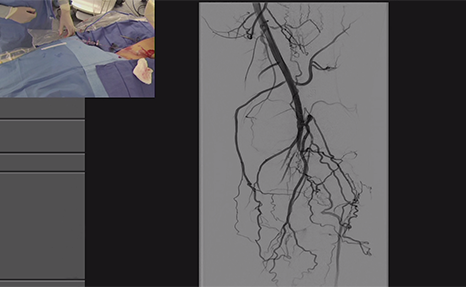 Complex Revascularization of Critical Limb Ischemia Patient Using Rotational Atherectomy